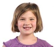Denti mancanti Fotografia Stock