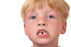 Denti mancanti immagini stock