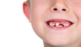 Denti mancanti sorridenti del ragazzo immagini stock libere da diritti