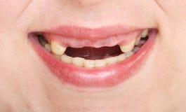 Denti marci. Fotografia Stock
