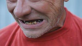 Denti marci dell'uomo ubriaco archivi video