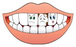 Denti nervosi illustrazione vettoriale