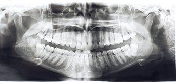 Denti panoramici dei raggi x Immagini Stock Libere da Diritti
