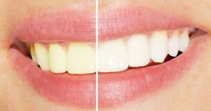 Denti prima e dopo imbiancare Fotografia Stock Libera da Diritti