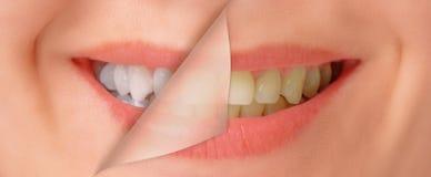 Denti prima e dopo imbiancare Fotografia Stock