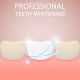 Denti professionali che imbiancano, dente sano e denti gialli, Fotografia Stock