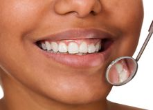 Denti sani della donna immagini stock