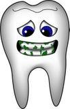denti sporchi Fotografia Stock Libera da Diritti