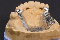 Dentier de cire photos stock