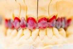 Dentier de cire photo libre de droits