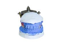 dentiera Fotografia Stock Libera da Diritti