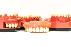 Dentiers dentaires d'isolement sur le blanc Photographie stock