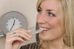 Dentist. A woman gets an invisalign