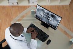 Dentist Analyzing X-ray Teeth On Computer Stock Photos