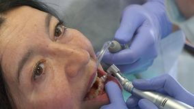 Dentist changes the brush of prophy cup. Professional dentist changing the brush of prophy cup. Close up of dental hygienist cleaning client`s teeth from plaque Royalty Free Stock Photos