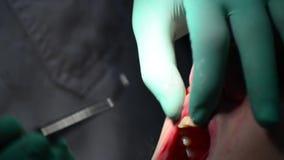 Dentist check gum for gingivitis disease stock video footage