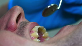 Dentist Checking Patient's Tooth stock video footage