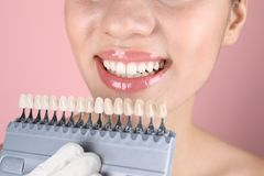 Dentist checking young woman`s teeth color royalty free stock images