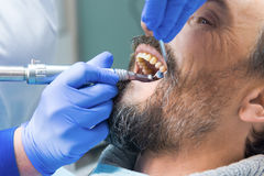 Dentist is cleaning teeth. Patient with open mouth. Best dental hospital Royalty Free Stock Image