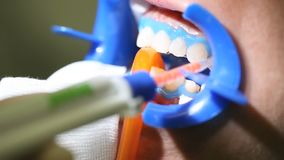 Dentist dental cleaning, tools to whiten. Bleaching stock video