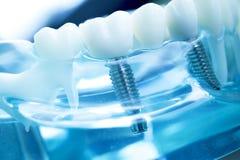 Dentist dental teeth implant. Dentist dental teeth teaching model showing titanium metal tooth implant screw royalty free stock photos
