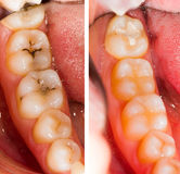 At the Dentist. Before and after dental treatment - beforeafter series Stock Photo