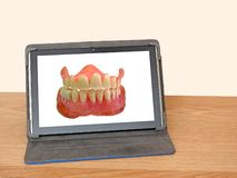 Dentist dentistry online set of false teeth. Photo of a set of false teeth depicting concept of dentist dentistry service online royalty free stock photo
