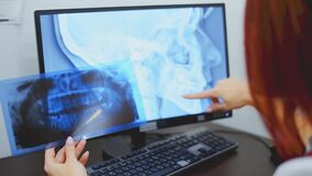 Doctor orthodontist analyzes the orthopantomogram of the patient`s jaws to diagnose