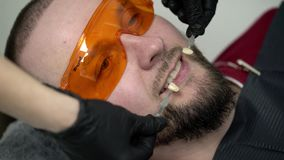 Dentist doctor checking whiteness of the teeth. For man stock video footage