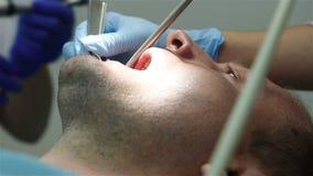 Dentist drills jaw stock video footage