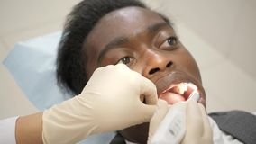 Dentist examines with macro camera oral cavity of the patient. Young African American male patient at chair at dental. Young beautiful girl doctor dentist. Young stock video