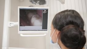Dentist examines with macro camera oral cavity of the patient. Young African American male patient at chair at dental. Young beautiful girl doctor dentist. Young stock footage