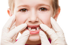 Dentist examining child teeth. Dental medicine and healthcare - child patient open mouth showing first baby milk or temporary teeth fall out Stock Image