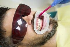Dentist examining patient`s teeth in clinic. Teeth whitening. royalty free stock photos
