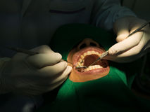 Dentist filling Royalty Free Stock Photo