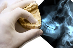 Dentist hand hold teethes model over x-ray Royalty Free Stock Photography