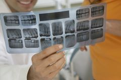 Dentist Holding Tooth X-Ray Stock Image