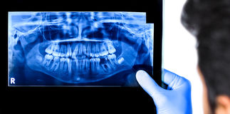 Dentist holding & viewing full mouth X-ray. Of a patient isolated in white background Stock Images