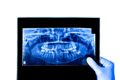 Dentist holding & viewing full mouth X-ray Stock Images