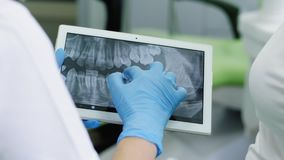 Dentist looking at human teeth X-ray on the digital tablet. Dentist and patient choosing treatment in consultation with medical equipment in the background stock video footage