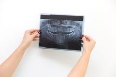 Dentist looking at x-ray Royalty Free Stock Photo