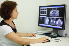 Dentist looks jaw X-rays at computer monitor Royalty Free Stock Images