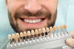 Dentist matching young man`s teeth color with palette. Closeup royalty free stock photos