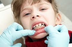 At dentist medic orthodontic doctor Stock Photography