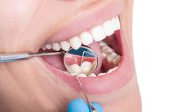 Dentist mirror reflecting teeth Royalty Free Stock Photo