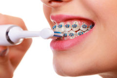 Woman smiling cleaning teeth with braces. Dentist and orthodontist concept. Young woman smiling cleaning and brushing teeth with blue braces using toothbrush Royalty Free Stock Photography