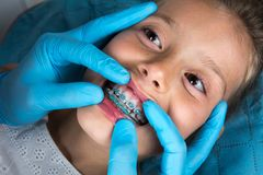 Dentist, Orthodontist examining a little girl patient`s teeth. With green braces. Close up of girl head and dentist, orthodontist hands with blue gloves stock photos