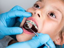 Dentist, Orthodontist examining a little girl patient`s teeth. With green braces. Close up of girl head and dentist, orthodontist hands with blue gloves stock photography