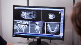Dentist and orthodontist is viewing x-rays of teeth and jaws of patient on monitor, view from back