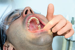 Dentist patient mouth missing teeth hands glove hospital surgery Stock Photography
